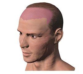 前頭部の薄毛 | 自毛植毛アスク...