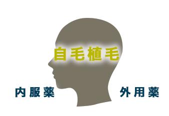 自毛植毛 ,内服薬(フィナステリド,ミノキシジル),外用薬(ミノキシジル)